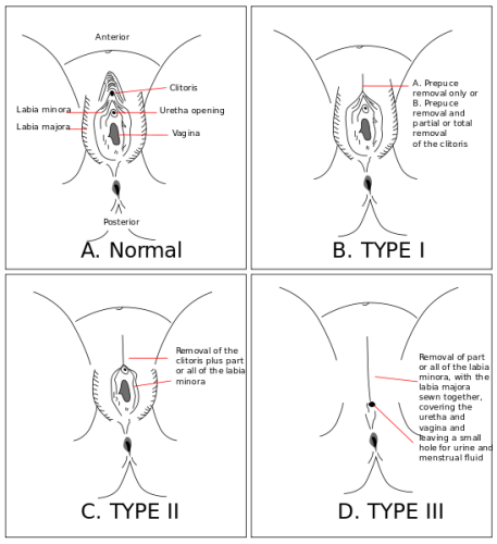 FGM Types