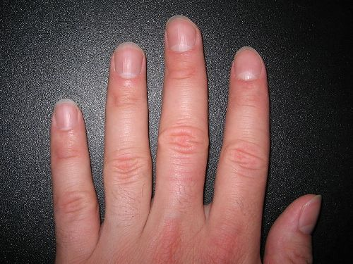 Facts about Fingernails